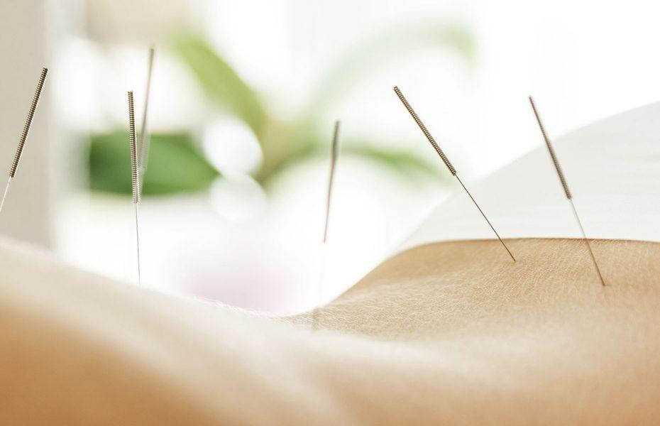 Obesity-Acupuncture