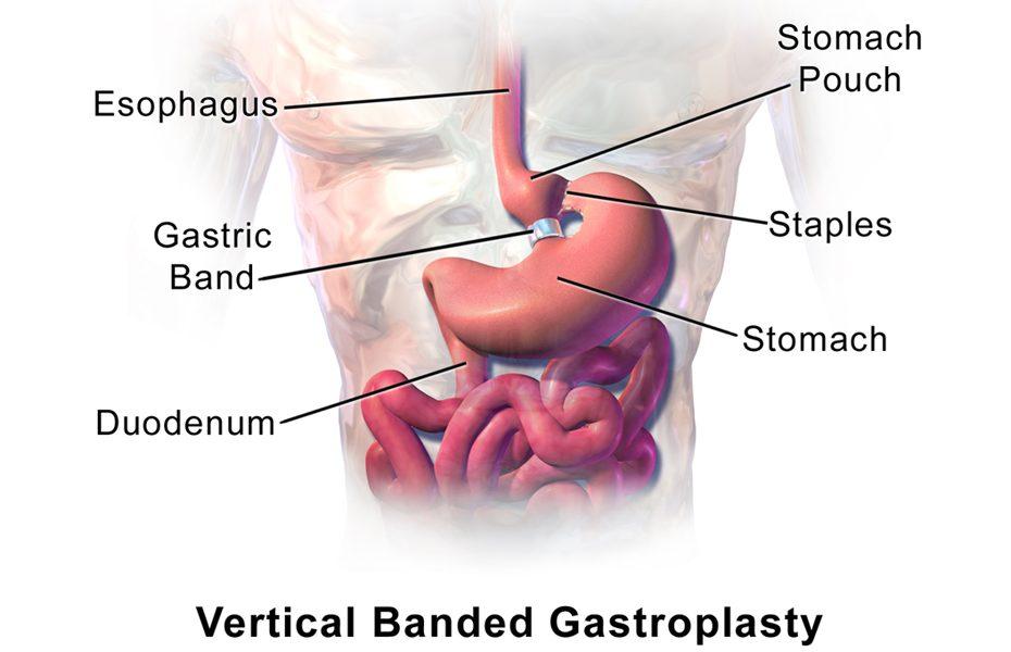Vertical-Banded-Gastroplasty