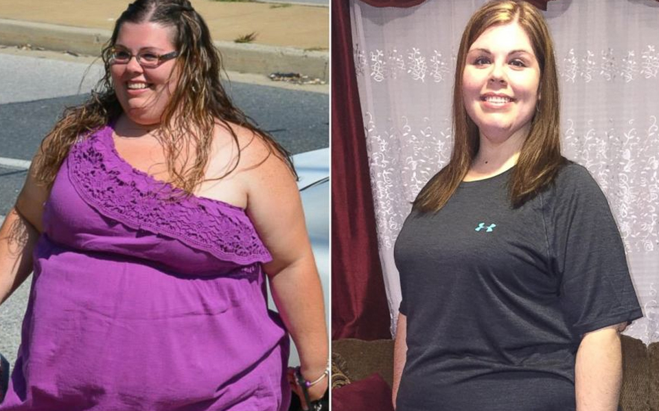 Stomach Bypass